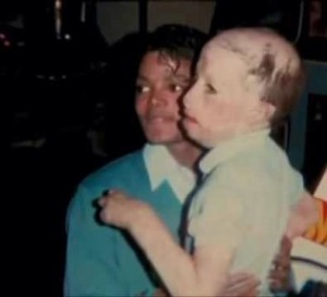 Michael Jackson and burn victim Dave Rothenberg